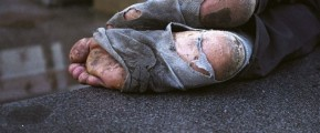 Photo of homeless feet