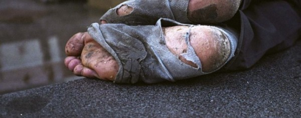 Photo of homeless feet